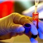 Xet nghiem ADN giup ngua benh tat