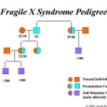 fragile X syndrome pedigree 150x150 thong tin